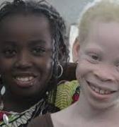 El estigma de nacer albino en África: Guinea, el primer país en aprobar una ley para protegerlos